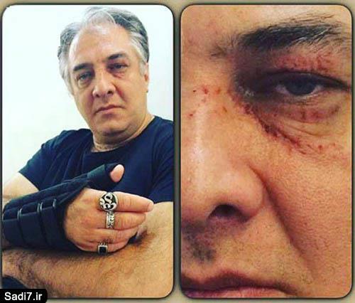 ایرج نوذری به شدت مجروح شد + عکس